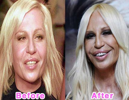 Garry Shandling Came Back With Failed Plastic Surgery http://surgerystar.com/garry-shandling-came-back-with-failed-plasti
