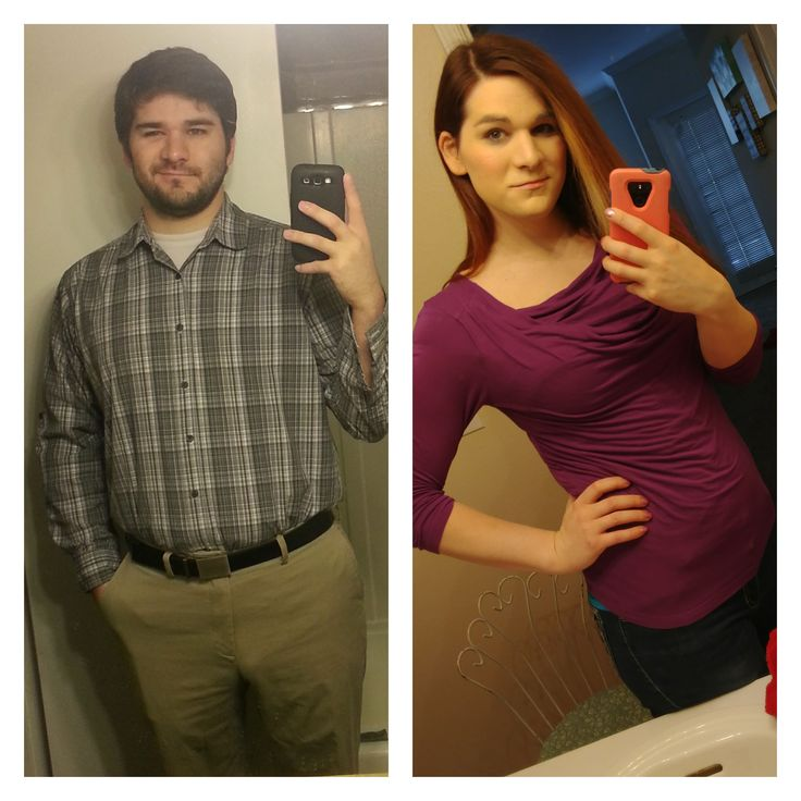 Female hrt journal male transsexual