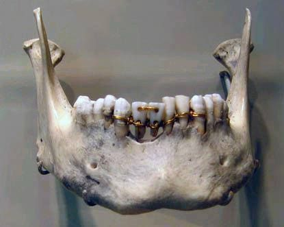 τα πρώτα στοιχεία της αρχαίας οδοντιατρικής που έχουμε είναι μια εκπληκτικά λεπτομερή οδοντιατρική εργασία σε μια μούμια από την αρχαία Αίγυπτο, που οι αρχαιολόγοι έχουν χρονολογήσει στο 2000 π.Χ. Το έργο φαντάζει περίπλοκο...