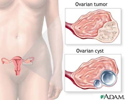 Contraceptive pill lowers risk of ovarian cancer