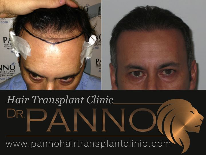 FUE specialist Dr. Panno results