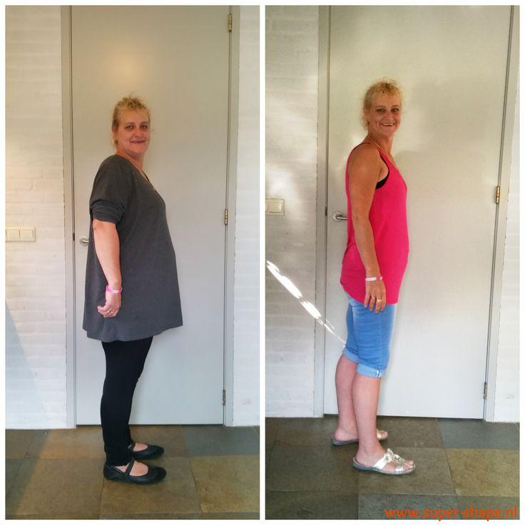 Sandra: 'Ik ben 30 kg kwijt dankzij het Super Shape afslankprogramma!'