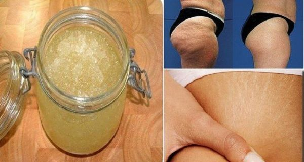 Get Rid of Stretch Marks and Cellulite Forever Using This 2-Ingredient Homemade Exfoliator