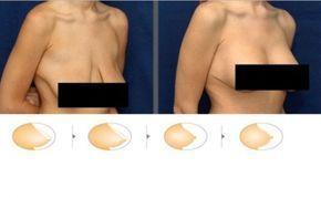 Voici un Super-masque naturel contre les seins affaissés … Des résultats étonnants après 5 jours seulement !!<br>http://www.astucesnaturelles.net/voici-super-masque-naturel-contre-seins-affaisses-resultats-etonnants-apres-5-jours/