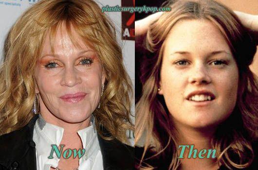 Cosmetic Surgery Cosmetic Surgeryshots And Facial Pics