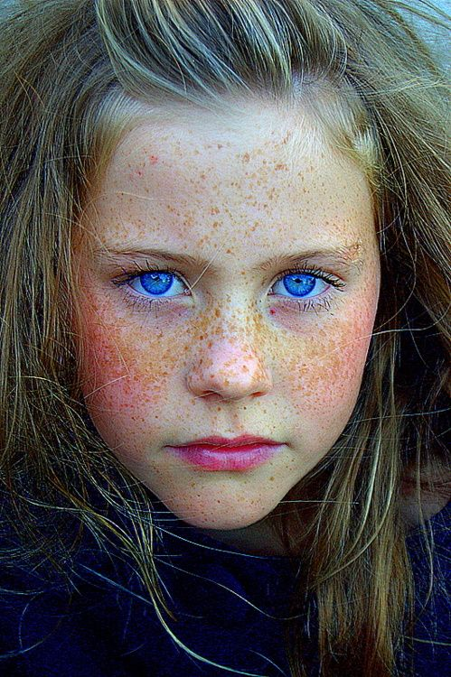 Freckles & Beautiful Blue eyes
