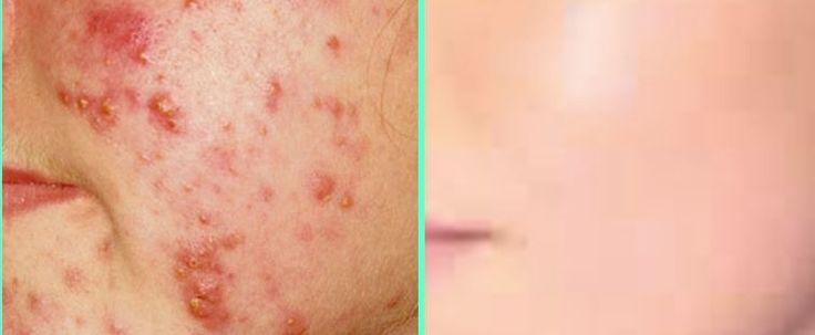 Akne – das leidige Thema des häufigsten Hautproblems heutzutage. Ratschläge und Hausmittelchen, die dagegen helfen sollen, gibt es zu Hauf. Dennoch quälen sich noch unzählige Menschen damit h…