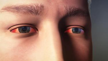 Woher kommen rote Augen?
