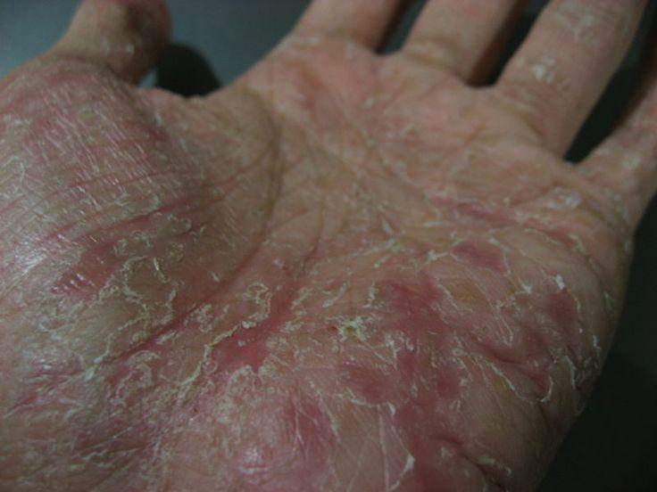 How I Treated My Pompholyx Eczema (Dyshidrotic Dermatitis) Skin Condition