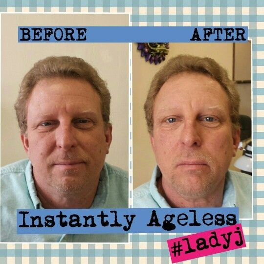 INSTANTLY AGELESS! 2 minutes and lasts 8 hours. Bags under youe eyes never saw it coming! Ask me how! Nmwyndham.jeunesseglobal.com