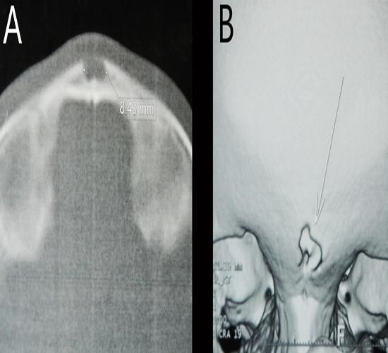 Nasofrontal Dermal Sinus with Intradiploic Epidermoid Cyst: Case Report by Ben Nsir A in JNSk