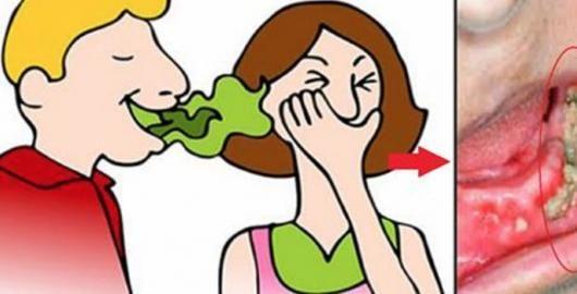 Muitas pessoas são vítimas do herpes labial, essas feridinhas dolorosas que surgem na boca e ao redor dela.O que causa esse problema?