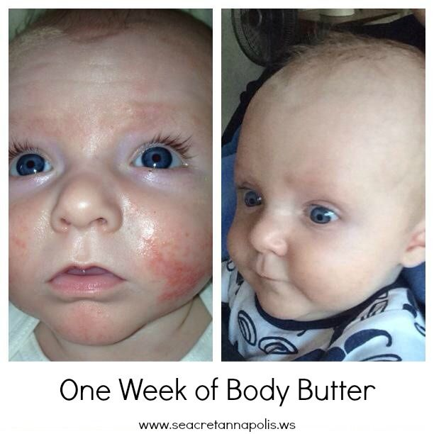 Before  After Photos.  Just one week of daily body butter use.  SEACRET works!
