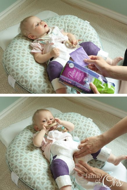 Infant Baby With Cough Diapering A Spica Cast Hip Dysplasia Baby Diaper
