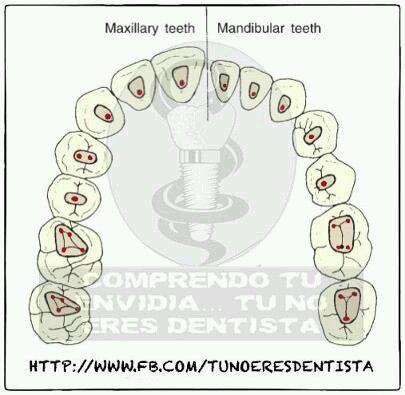 Inicia Diplomado Intensivo de Endodoncia Avanzada 15 de Mayo del 2015 Inscripciones abiertas Whatsapp 462 108 72 46