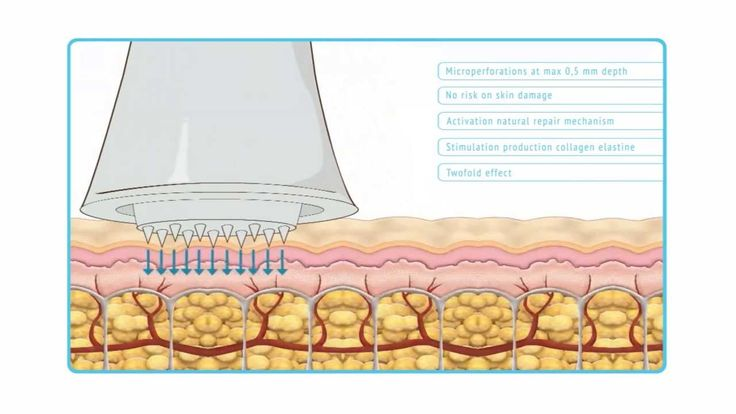 Why does Dermatude Meta Therapy work? See it here. #skin #health #beauty