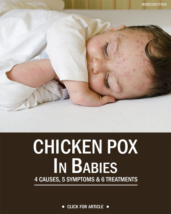 the causes symptoms and treatment of chicken pox Shingles is an infection caused by the varicella-zoster virus, which is the same virus that causes chickenpox chickenpox can live on in your nervous tissues.