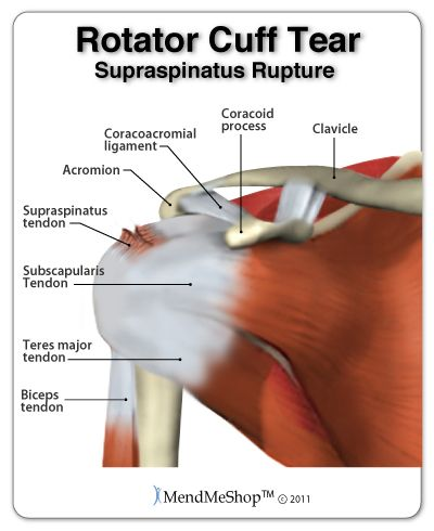 A rotator cuff tear can occur in any of the 4 tendons of the rotator cuff; #supraspinatus, subscapularis, teres minor, or infraspinatus. However, most rotator cuff tears occur to the supraspinatus tendon. The supraspinatus tendon, originates on the scapula (shoulder blade) and passes under the acromioclavicular joint and the ligament that connects the coracoid process to the acromion, finally connecting to the greater tubercle (top of the humerus). #rotatorcuff