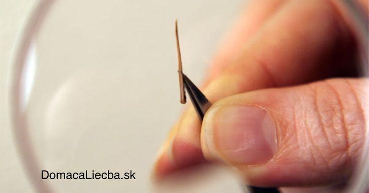 Ako bezbolestne vybrať triesku z prsta, ak to nejde s pinzetou
