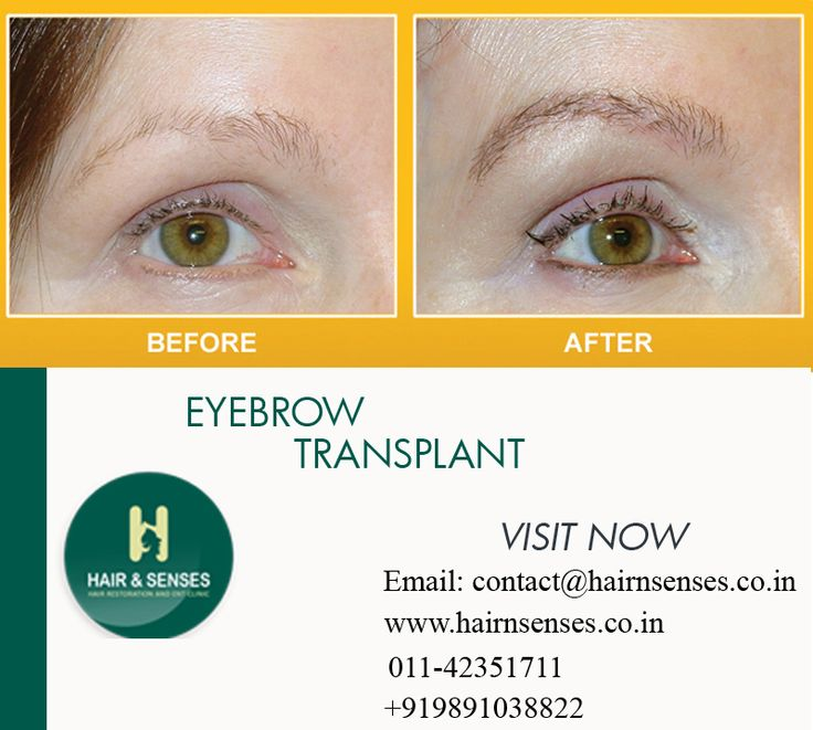 #Eyebrow_Transplant #Eyebrow_Restoration @hairnsenses.co.in  Get rid of your eyebrow hair loss tensions.  Visit http://www.hairnsenses.co.in/ for FREE CONSULTATION and OFFERS On Hair Transplant.