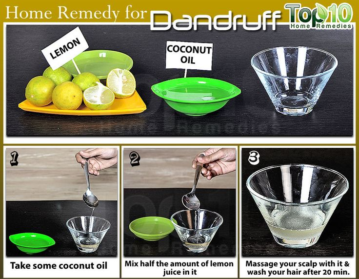 Coconut Oil Home Remedy to get rid of Dandruff on your scalp. #dandruff #homeremedy