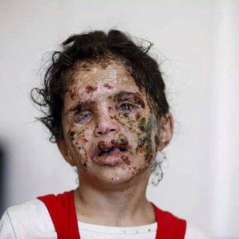 """U.S. sells white phosphorus bombs to Saudi Arabia, who, in turn, use them on Yemeni children. Here's your tax dollars at work, America."""