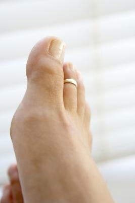 La historia del anillo del dedo del pie   eHow en Español
