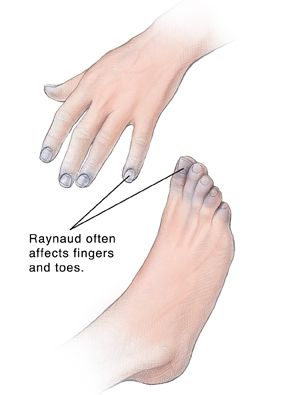 What Causes Raynaud's Syndrome | Symptoms of Raynaud's Disease