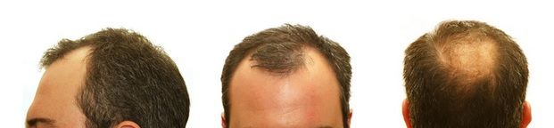 What San Jose & San Francisco Men Choose for Hair Restoration: What Causes Men's Hair Loss