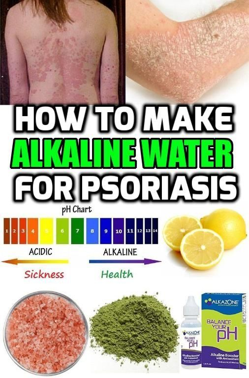 Drinking Hot Water For Psoriasis