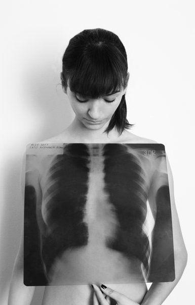 ♥ X-ray