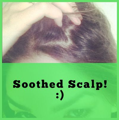 soothed scalp
