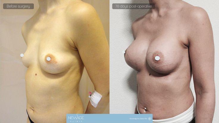 Die Patientin hatte eine Brustvergrösserungs Op mit Dr Ozge Ergun von der Istanbul   #Brustvergrösserungs #Brust #AesthetischeChirurgie #Aesthetische #Ästhetische #plastischeChirurgie #Schönheit #Fettabsaugung #Nasenkorrektur