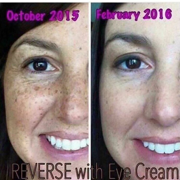 RESULTS from Rodan + Fields Reverse! Want results like these? Message me 734-748-016 for 10% off and a free full size product!