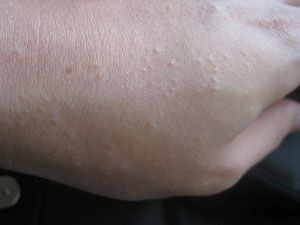 Common Rashes Part 2 in Children: How to Recognize, What to Do