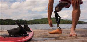 Bionic limbs :)