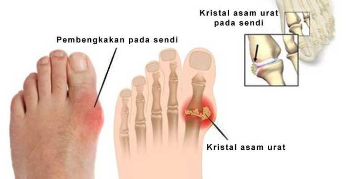 21 best images about Info Penyakit Asam Urat on Pinterest ...