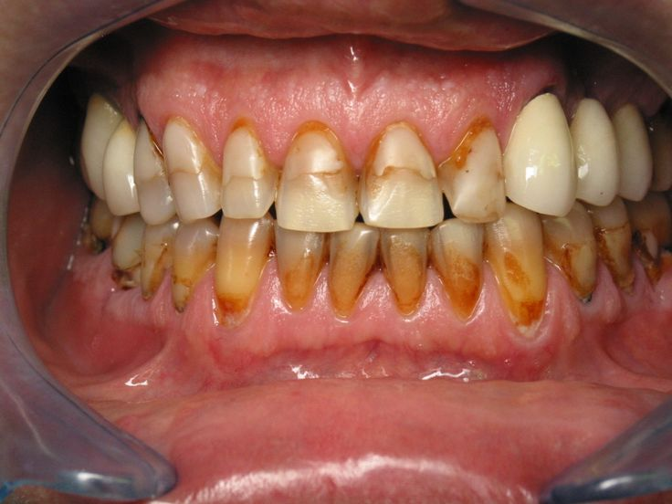1000 images about makeup morgue teeth on pinterest