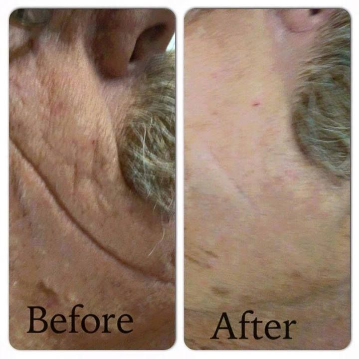 Can men use Instantly Ageless? YES Does it work on more than just the eyes? YES Can it be used daily? YES How does it work?... See More