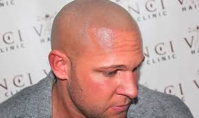 Image result for scalp micropigmentation