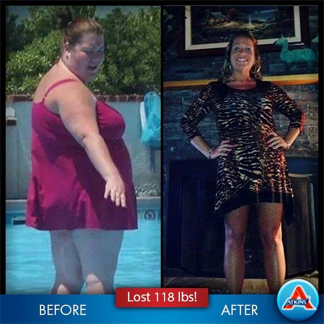 Hypothyroid in photos–Before and After