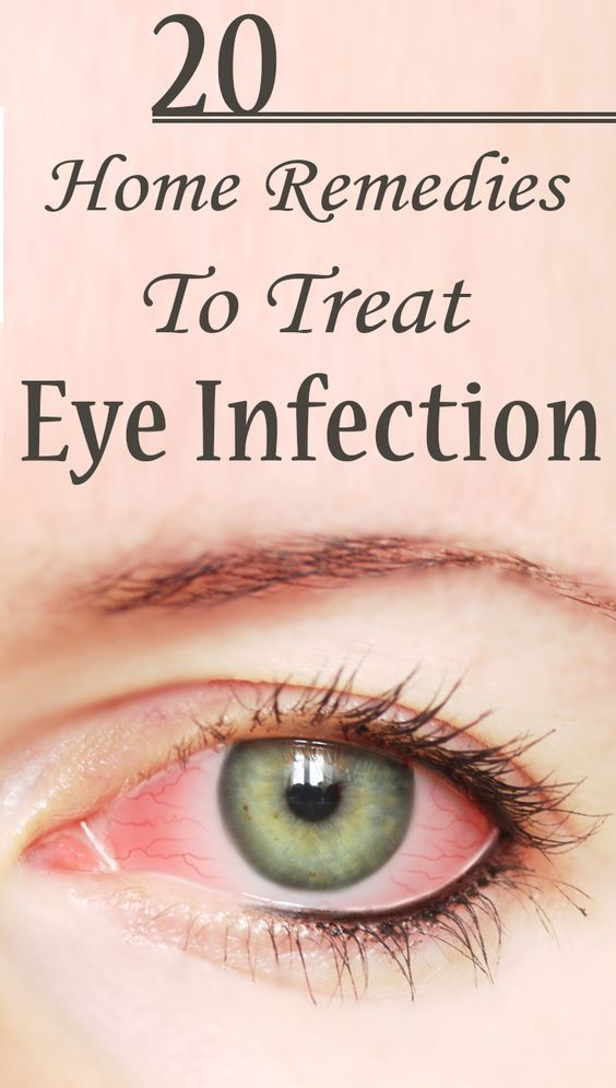 25 Effective Home Remedies To Treat Eye Infection : Eye infections can affect anybody. Most eye infections are caused by bacteria, viruses, fungus or other microbiological means. These pathogens can cause eye redness, itching and swelling.