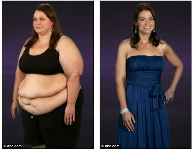 weight loss after obesity
