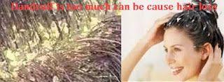 Wussten Sie, dass eine der Ursachen der Haarausfall zu viel Schuppen auf der Kopfhaut. Juckreiz der Kopfhaut durch Schuppen machen, unsere Hände zu kratzen, die Kopfhaut. Eine lange Zeit, wird die Kopfhaut Abplatzungen auftreten. Es könnte sein gesehen von der Bewegung unserer Hände. Wenn man...