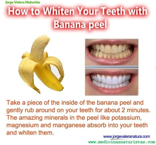 banana teeth whitener
