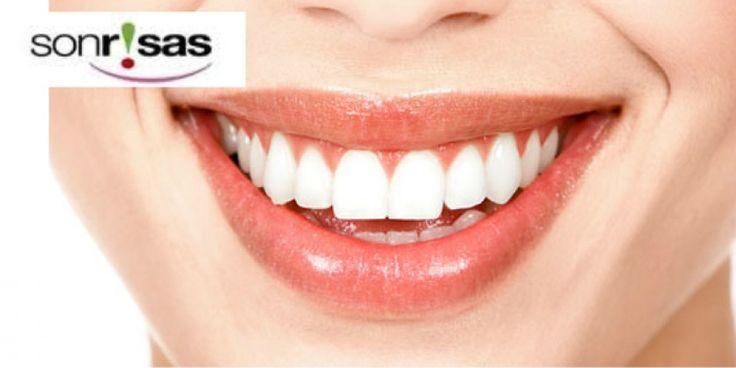 #Oferta. #Alicante. 9€ por limpieza dental, por 59€ añade blanqueamiento LED o elige férula dental