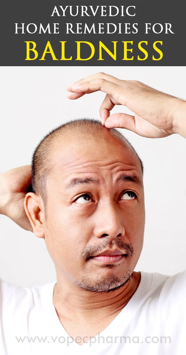 Using home remedies like applying raw onion juice to bald and sparse spots on your scalp will cure you of #baldnessproblems. There are many such herbal miracles. http://www.vopecpharma.com/ayurvedic-home-remedies-for-baldness.aspx