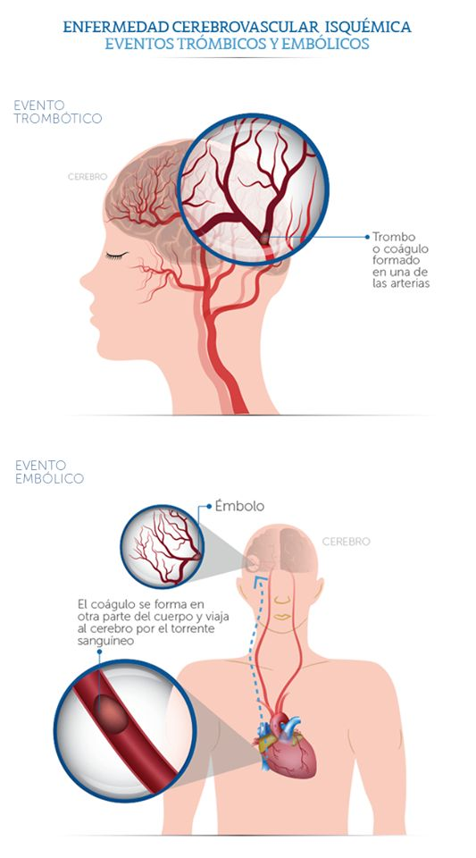 45 best Neurología images on Pinterest
