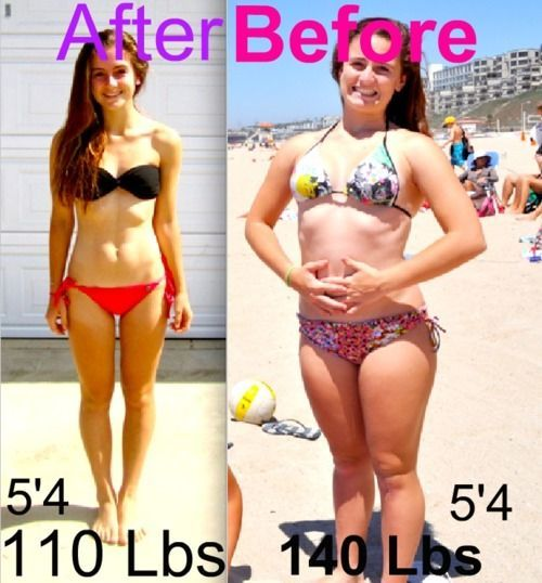 Weightloss Stories