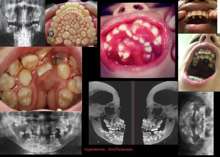 Can you guess which is the fake hyperdontia photo? Oh yes! That'll be the one all over Pinterest!!